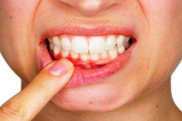 5 Proven Ways To Prevent Bleeding Gums